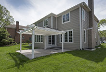 825-Lenox-Glenview - Backyard, Pergola - Globex Developments Custom Homes